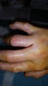 2017-04-14-1351_Sår efter operation i hånd_-_2