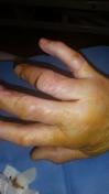 2017-04-16-1300_Sår efter operation i hånd_-_2