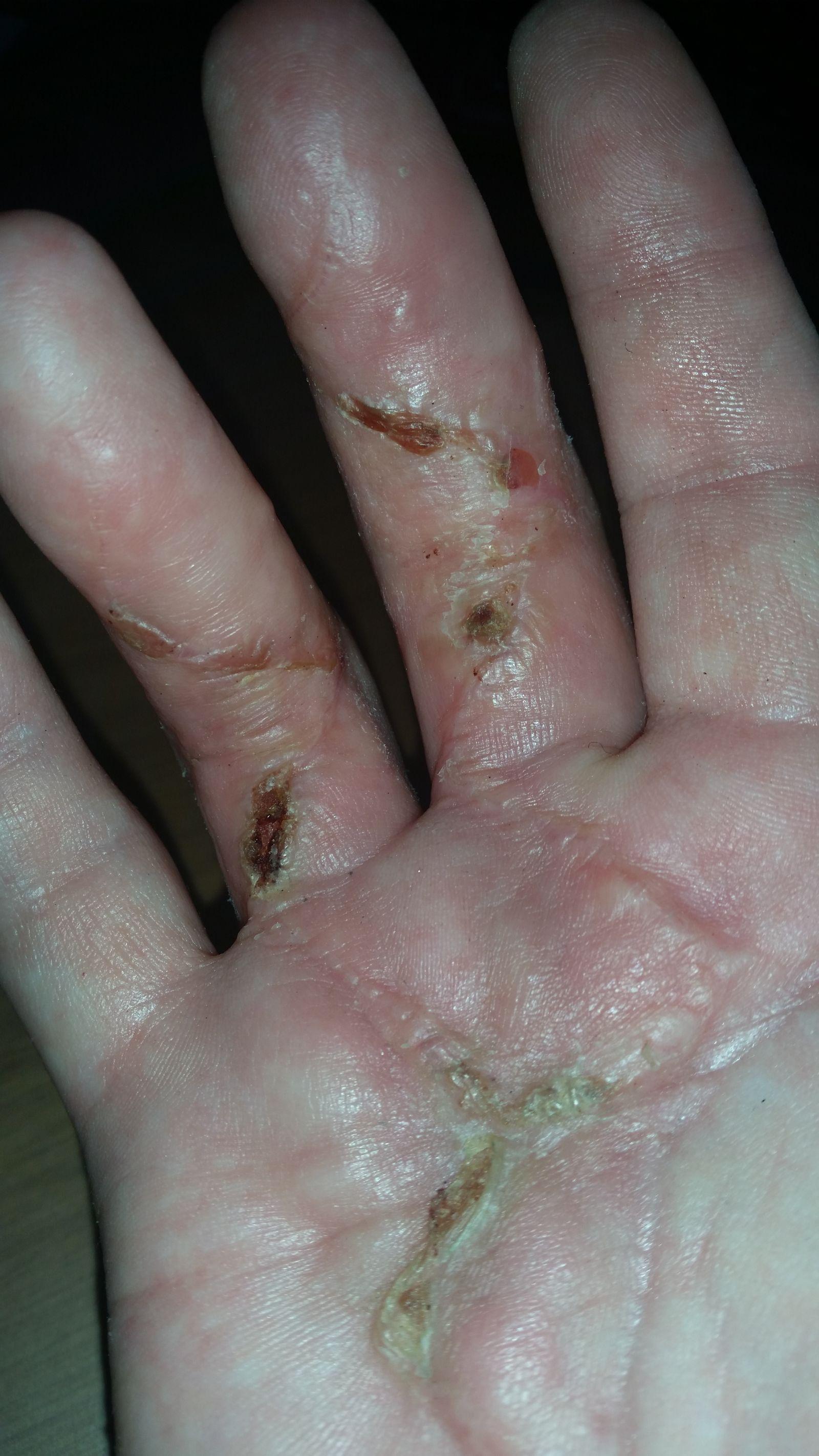 Sår efter operation i hånd