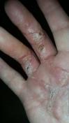 Sår efter opration i hånd