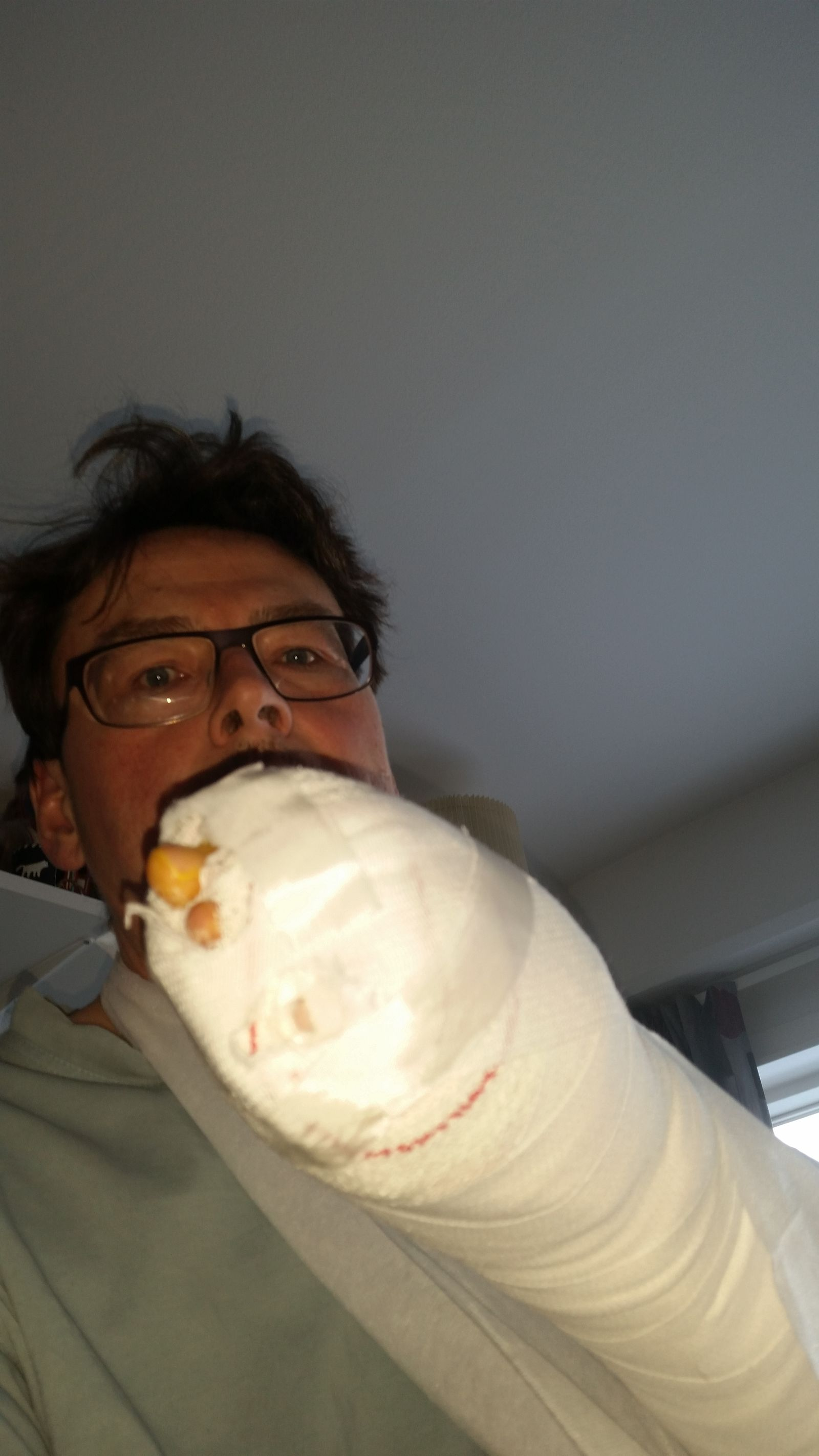 Dagen efter operation - med boksehandske